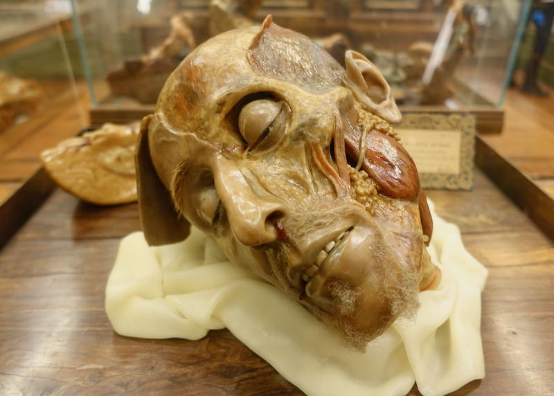 Wax anatomical head by Zumbo in La Specola Museum in Florence, Italy